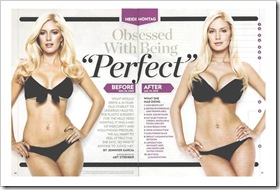 HEIDIMONTAGPLASTICSURGERYPHOTOShorizontal thumb The timeless and dangerous pursuit of perfection